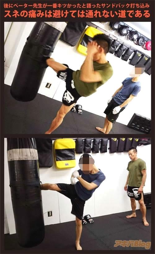キックボクシングのスネの痛み